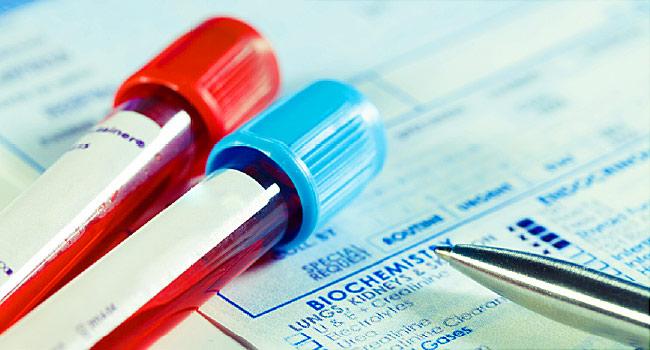 با تست خون میتوان علائم اولیه آلزایمر را مشخص کرد
