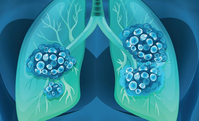 سرطان ریه، کشندهترین سرطان دنیا