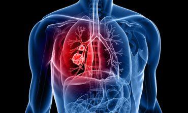 انواع بیماریهای ریوی و روشهای درمان خانگی