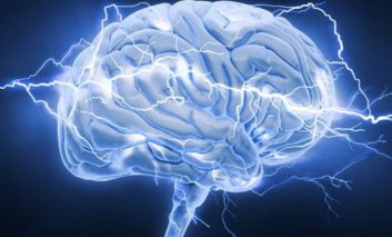 استفاده از الکتروشوک (ECT) در درمان افسردگیهای شدید