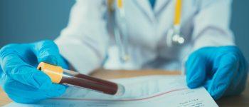 پیشبینی طول عمر از طریق آزمایش خون