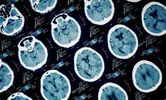 چگونه مغز ما زبالهها را بیرون میریزد؟