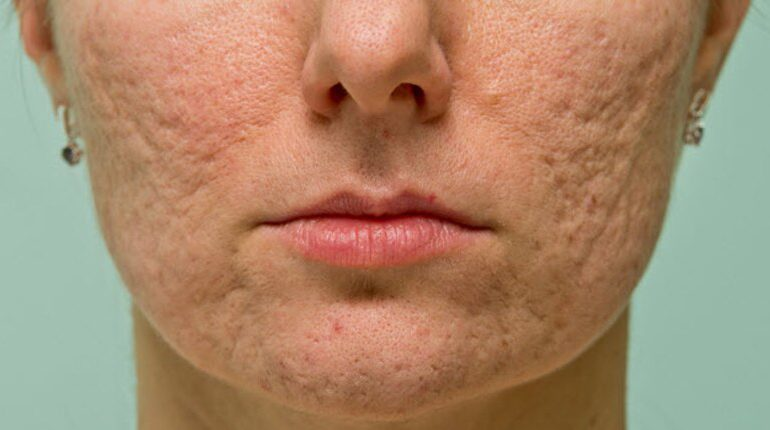 درمانهای موثر برای جای جوشهای عمیق، از نظر متخصصین پوست