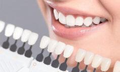 اطلاعات جامع و کامل در مورد کامپوزیت و لمینت دندان