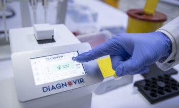 آغاز تولید انبوه سیستم تشخیص کرونا در 10 ثانیه در ترکیه