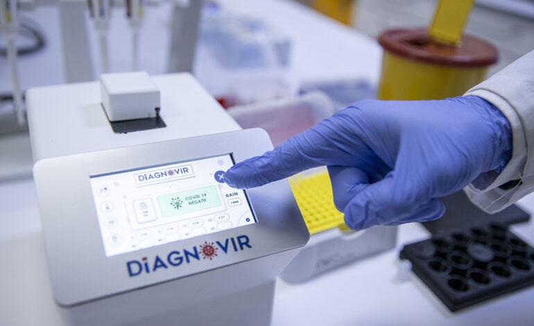 آغاز تولید انبوه سیستم تشخیص کرونا در ۱۰ ثانیه در ترکیه