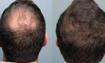 آشنایی با انواع روشهای کاشت مو