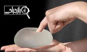 صفر تا صد جراحی پروتز سینه در راز جراحی